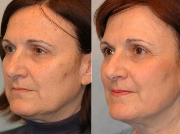 Độ dày biểu bì da và mức tăng sinh collagen trong mô thay đổi sau khi được can thiệp nhờ các phương pháp thẩm mỹ nội khoa