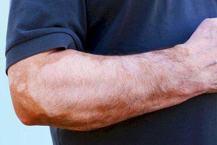 Mất sắc tố khi điều trị nám da
