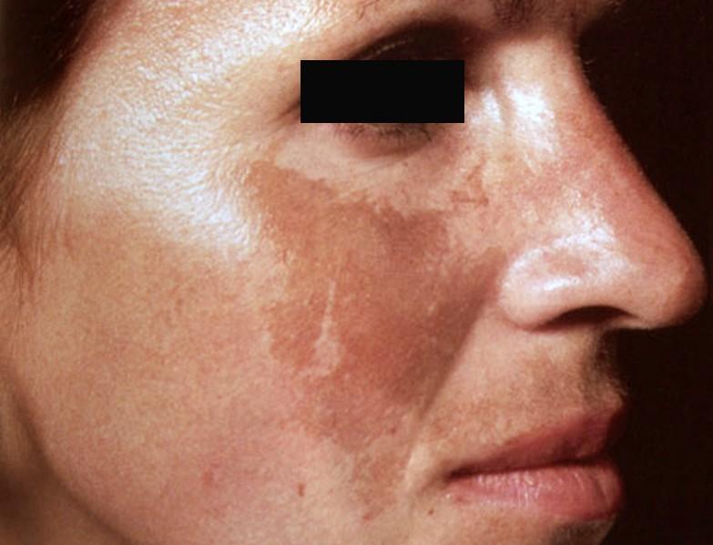 Cách phân biệt nám da và tàn nhang