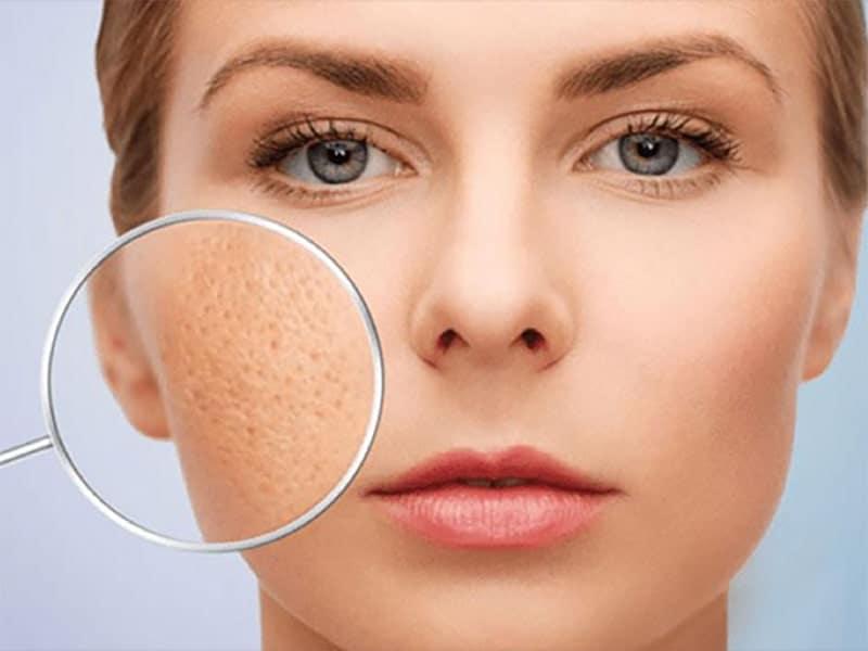 Thu nhỏ lỗ chân lông là cốt lõi để giảm nguy cơ hình thành mụn.