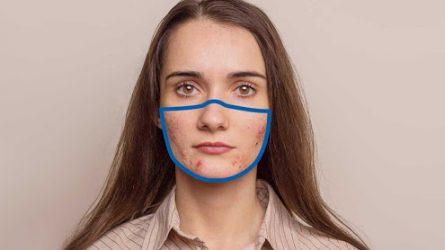 Maskne: thuật ngữ mới về làn da nổi mụn vì khẩu trang