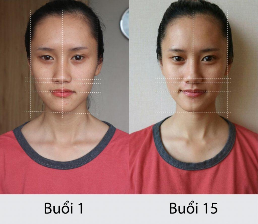 Khuôn mặt trở nên cân đối hơn nhờ phương pháp Golki