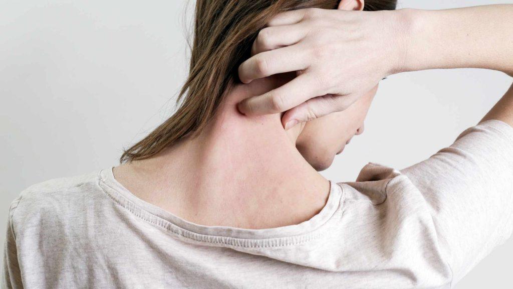 Phát ban là dấu hiệu da bị stress